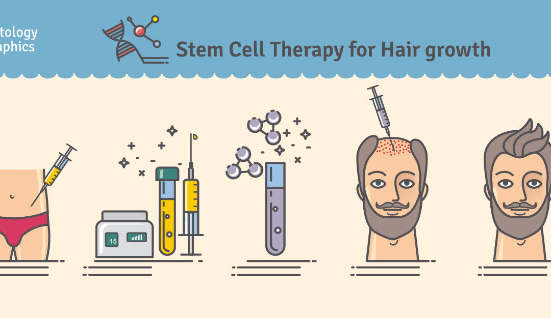 Should you get a stem cell treatment to improve your hair, skin and hips?